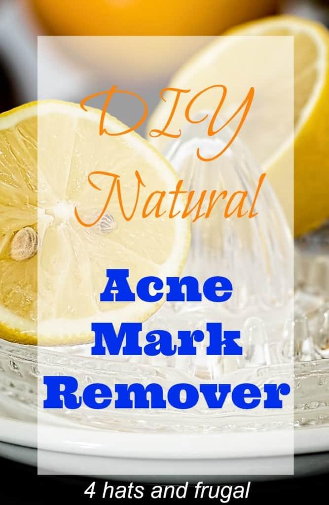 acne mark remover