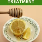 Looking for a natural and affordable way to get rid of acne? This homemade lemon acne remover recipe works every time.